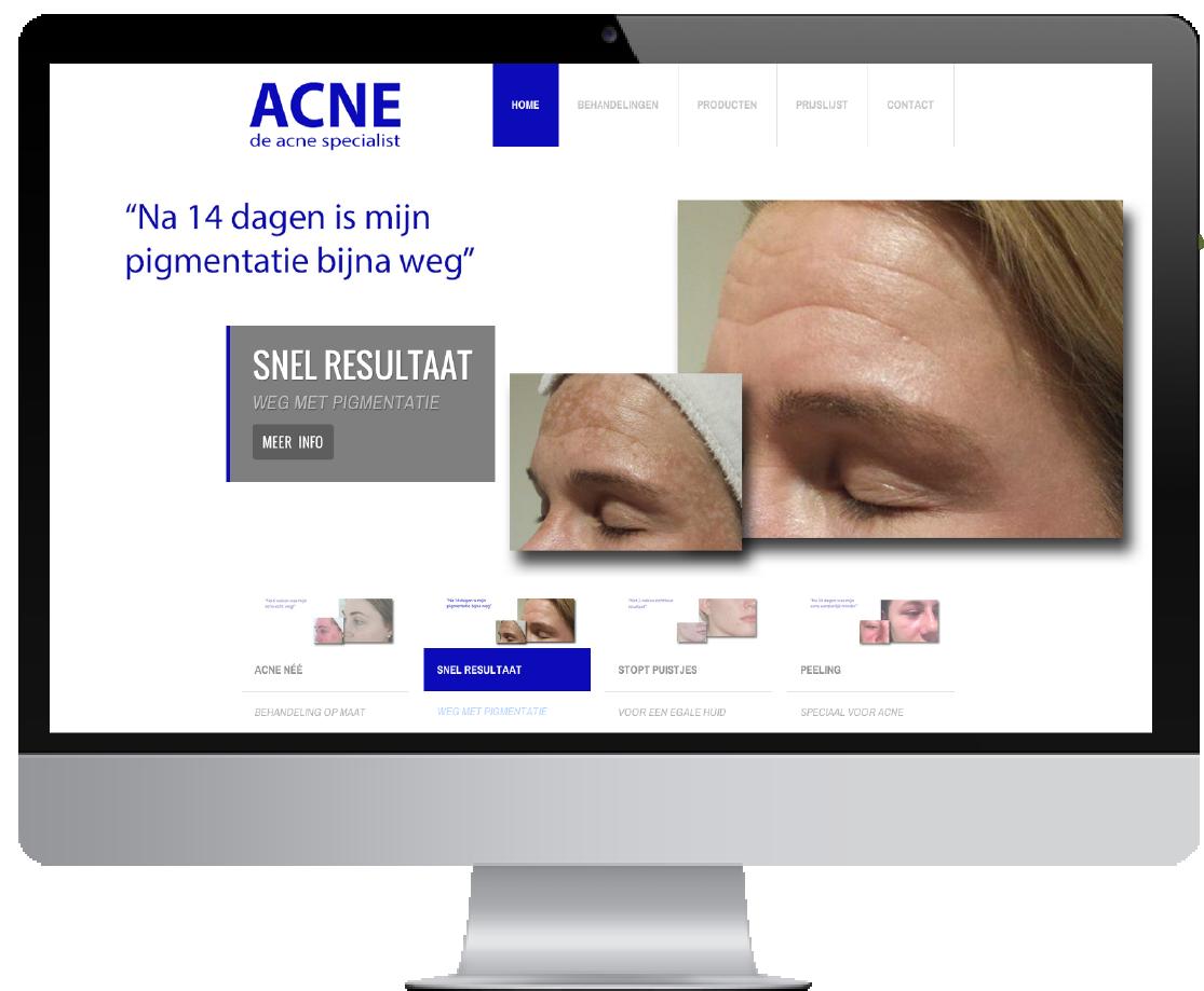 WordPress website de Acne specialist
